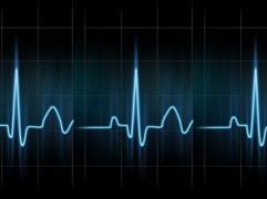 Kas ir pulsometrs un kam tas nepieciešams?
